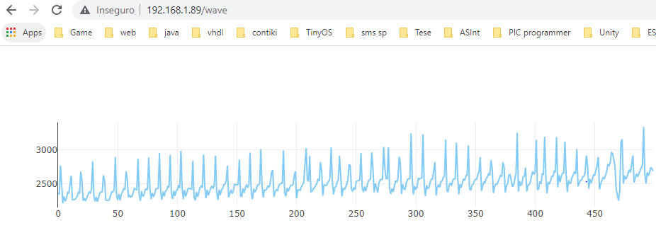 PPG Wave on a web page, served by the ESP32.
