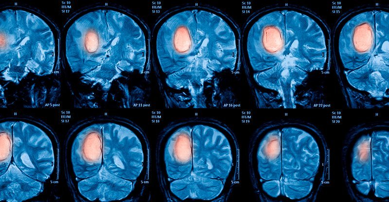 Brain Cancer And Electromagnetic Fields - Link Between Brain Cancer And Electromagnetic Fields - Tech Urdu