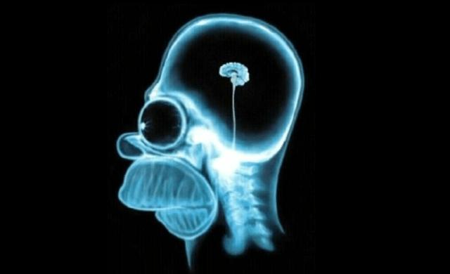 Social Media small brains