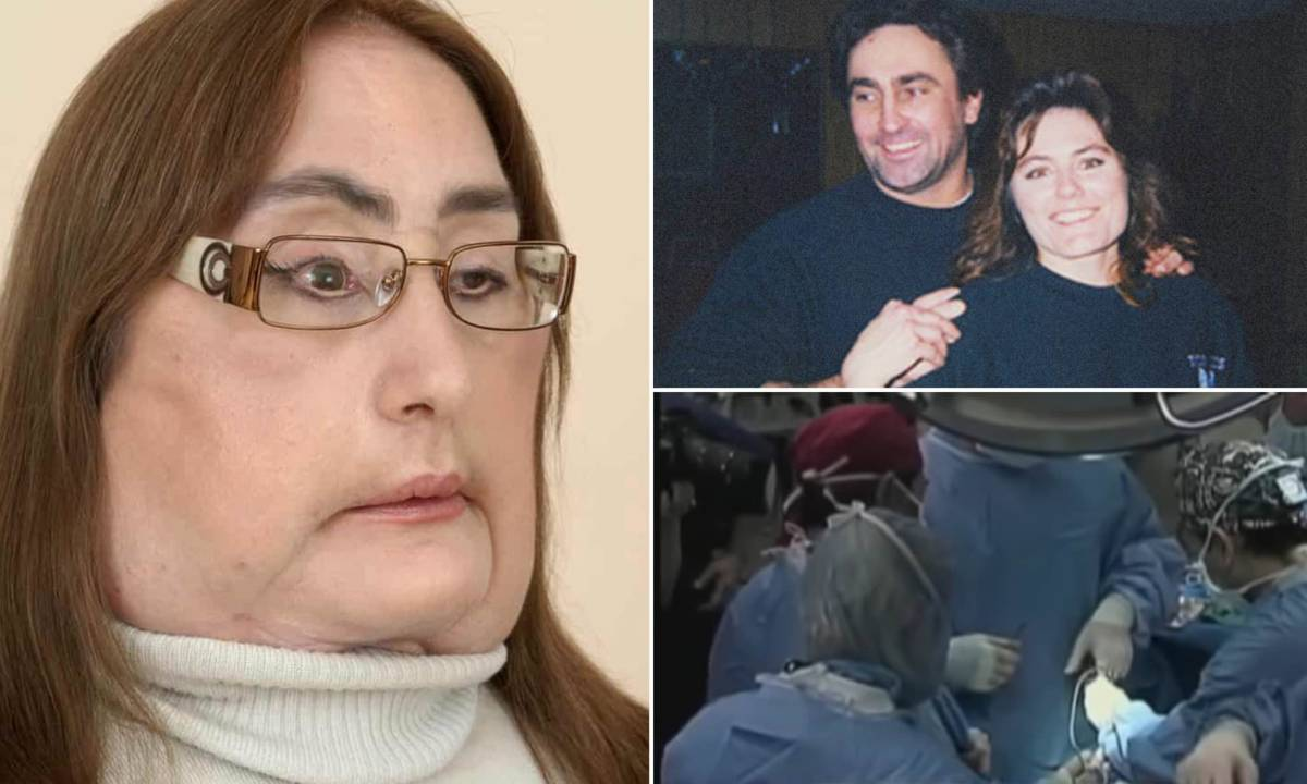 Woman Who Becomes 1st Person To Undergo Face Transplant