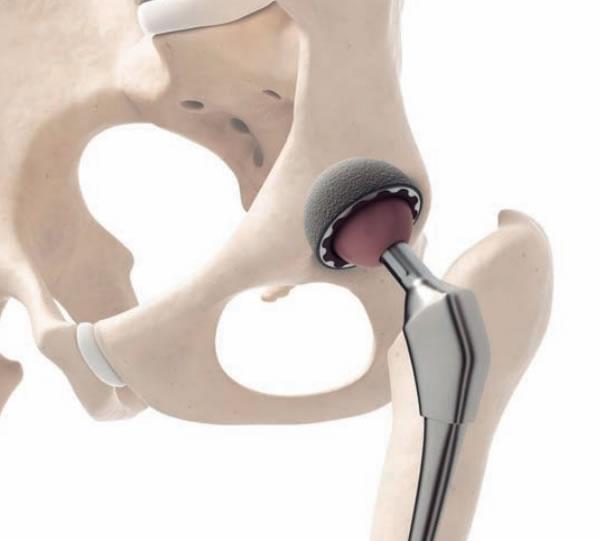 Tecnopia-ProtesisESIMEZacatenco2