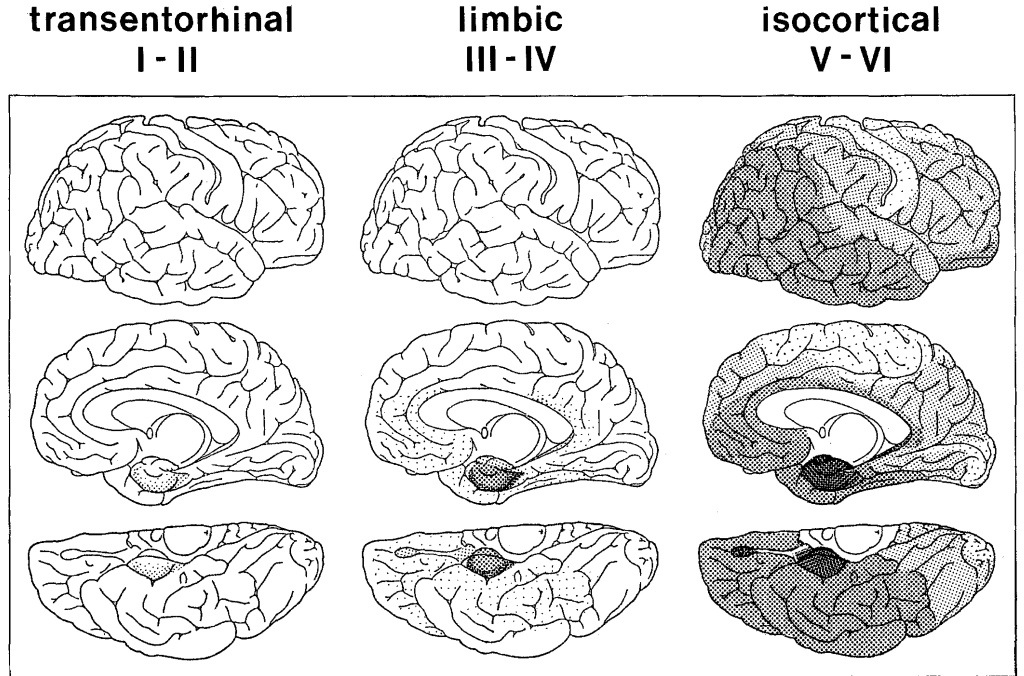 Role of MRI in diagnosis of mild cognitive impairment, and
