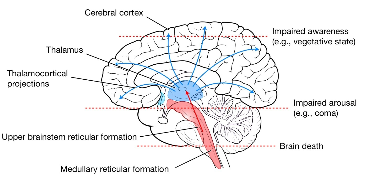 reticular formation diagram sony xplod wiring part of brain which controls consciousness medical interest lossofconsciousness jpg