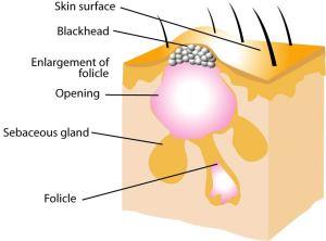 Teenage Acne Cures | Get Clear Healthy Skin
