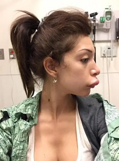 Farrah Abraham Botched Lips
