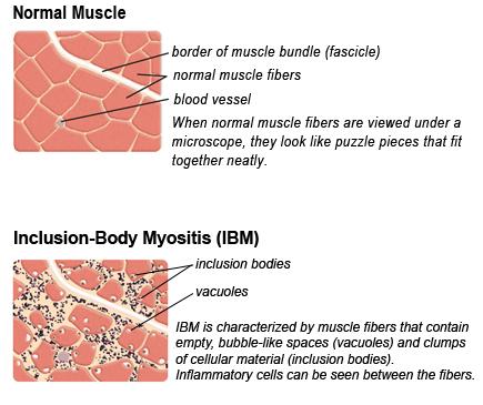 Diagnosis-IBM_biopsy