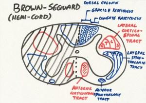 Brown-Sequard Syndrome (Hemi-Cord) Diagram