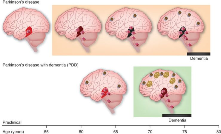 PD and PD dementia graphic