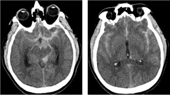 SAH CT scan