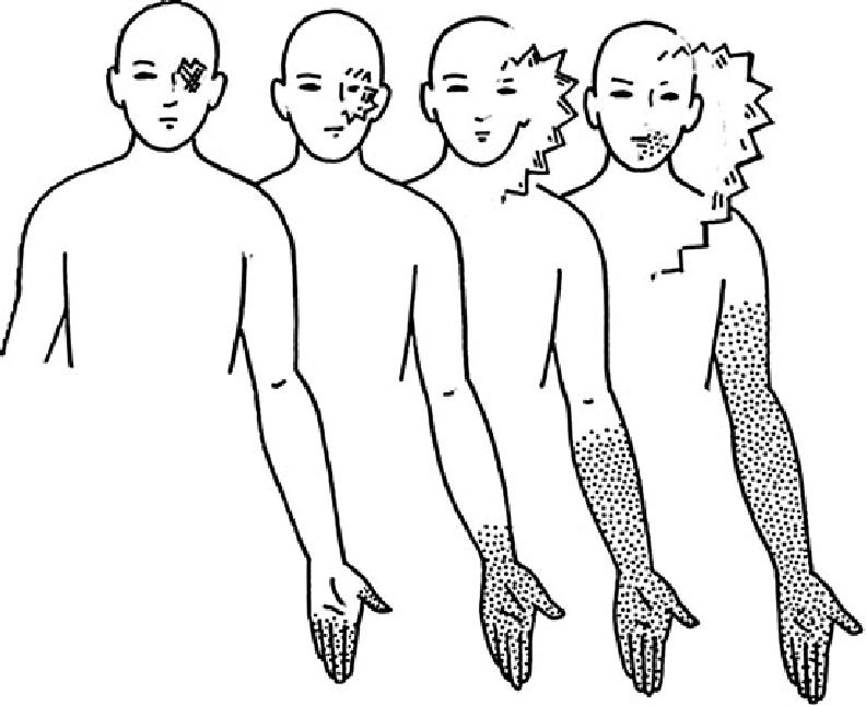 Typical-presentation-of-visual-aura-symptoms-associated