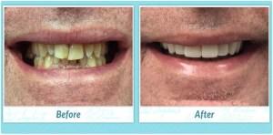 Dental Implants Smile Gallery Image of R.T.