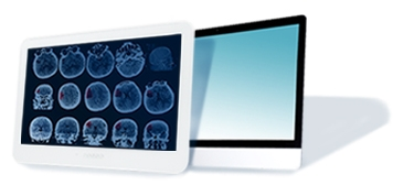 Two medical computer monitors, one displaying CT scans