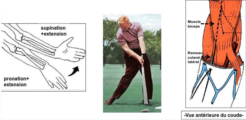 Compression au niveau de l avant bras