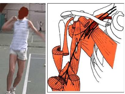 Compression du nerf lors de la pratique sportive 1