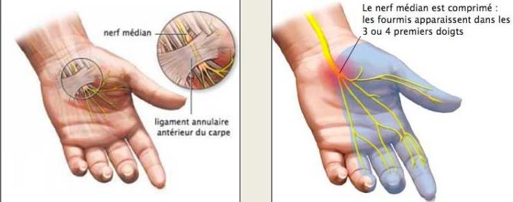 nerf median Le syndrome du canal carpien 1