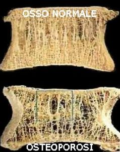 OSTEOPOROSI. immagine presa da internet
