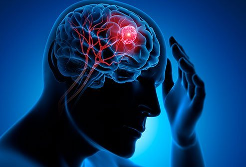 what were your first signs of a brain tumor