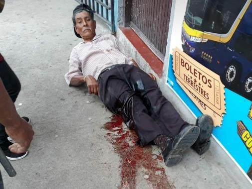 Muere hombre que resultó herido en asalto a cambista de Estelí