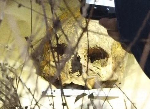 Policía investiga hallazgo de un cráneo humano cerca de cementerio de Estelí.