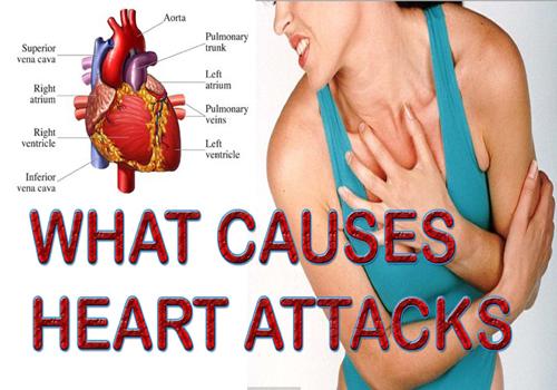 heart attacked reasons