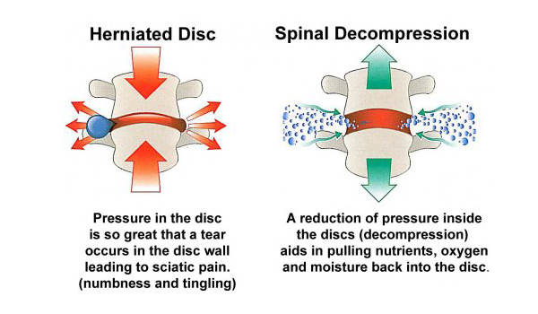 Herniated Disc and Spinal Decompression