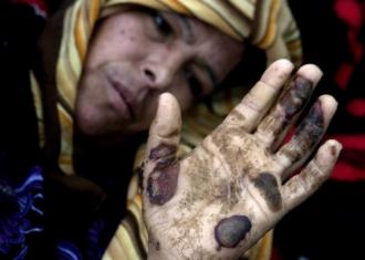 A Gaza, une Palestinienne brûlée au phosphore (sipa)
