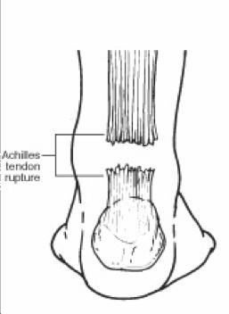 Genie Crute Achilles Tendonitis Rehab Time