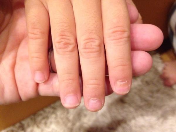 手足口病の後に爪が剝がれた!爪甲脫落癥の治療は?二枚爪のケア