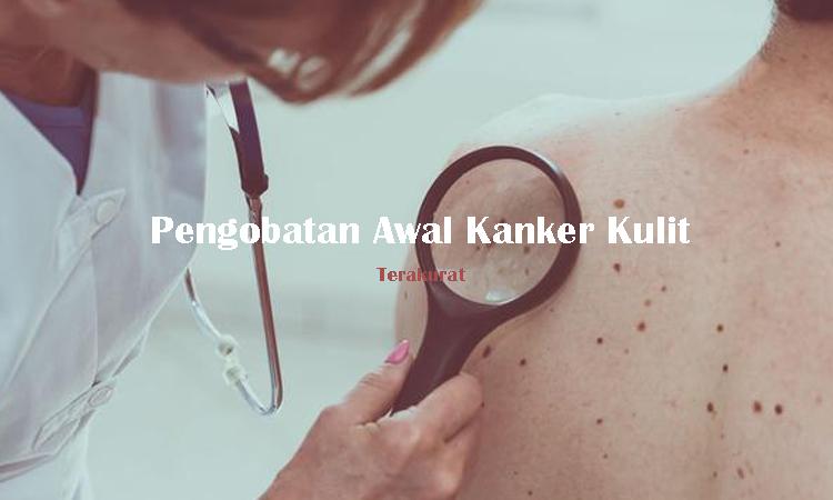 Terakurat - tips akurat - Penyakit kanker - mencegah kanker kulit - Kanker kulit adalah salah satu jenis penyakit yang dapat dilihat secara langsung karena kebanyakan tumbuh di lapisan kulit paling luar, obat kanker kulit dengan bahan alami cocok buat solusi penanganan awal yang aman