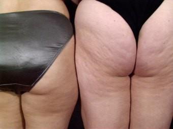 cellulite mature bikini