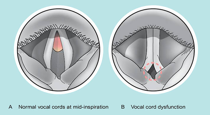 drawing of normal vocal cords and vocal cords with dysfunction