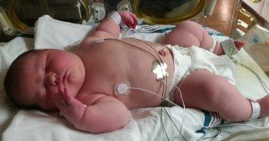 Bayi seberat 6 Kilogram Pemegang Rekor Bayi Terbesar di Dunia!!