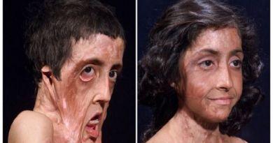 Before After 6 Foto transplantasi wajah bukti canggihnya medis