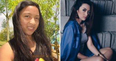 Mengalami Pubertas dari Gadis Biasa Menjadi Istimewa Gadis Cantik Ini Di Cibir