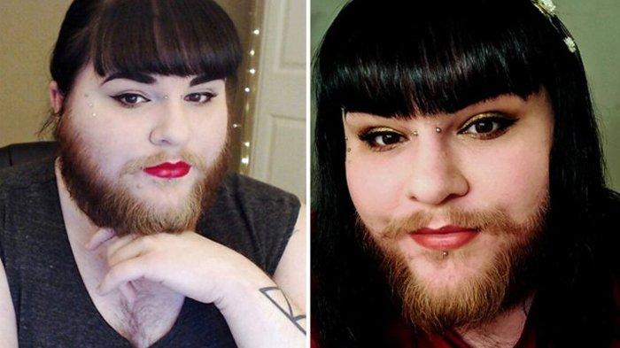 Wanita ini Awalnya Risih Akibat Kelainan Rambut di Wajah, Kini Hidupnya Berubah
