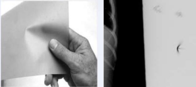 Preasure mark radiografi