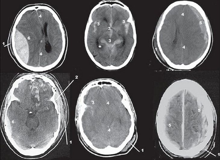 O que é, como é feita e qual o preparo da tomografia do crânio?
