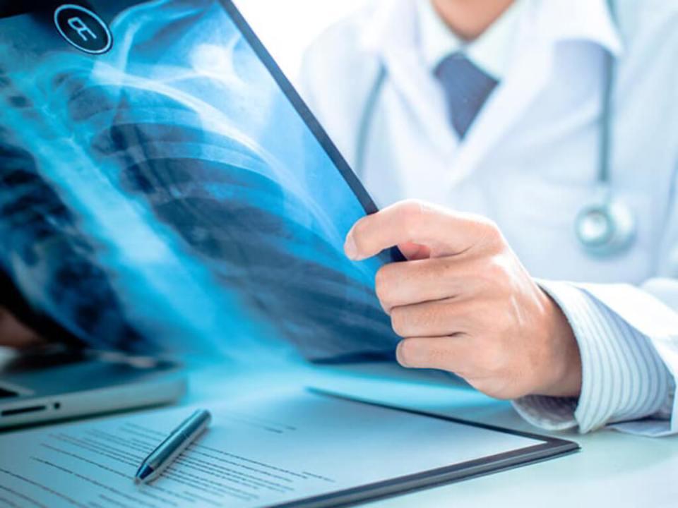 Mitos e verdades sobre o raio-x