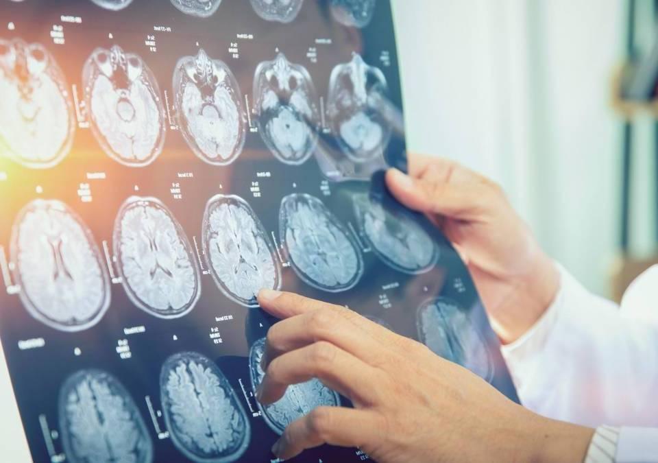 Câncer: entenda a importância dos exames de imagem no diagnóstico e tratamento