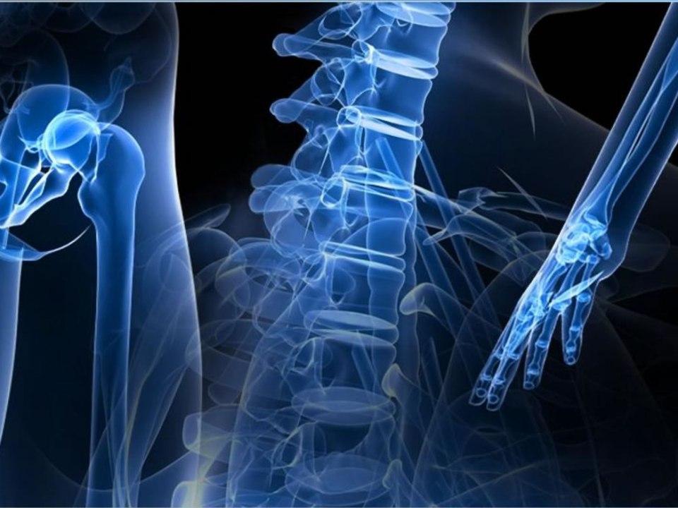 Exames de imagem que detectam problemas nos ossos