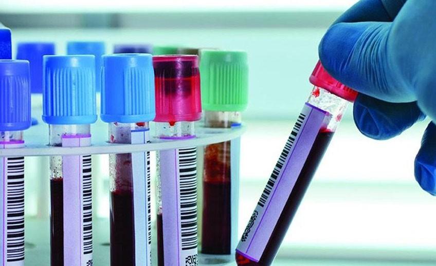 Антимюллеров гормон (АМГ) – анализ, норма у женщин. Когда сдавать, как повысить антимюллеров гормон?