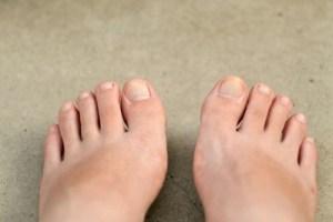足爪かたい水虫