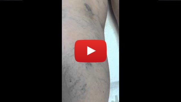Cosmetic Sclerotherapy video