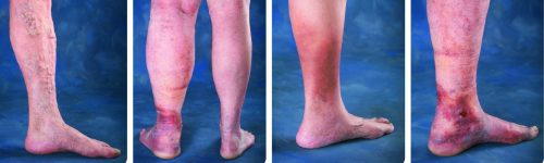 Medtronic Leg Ulcer Progression