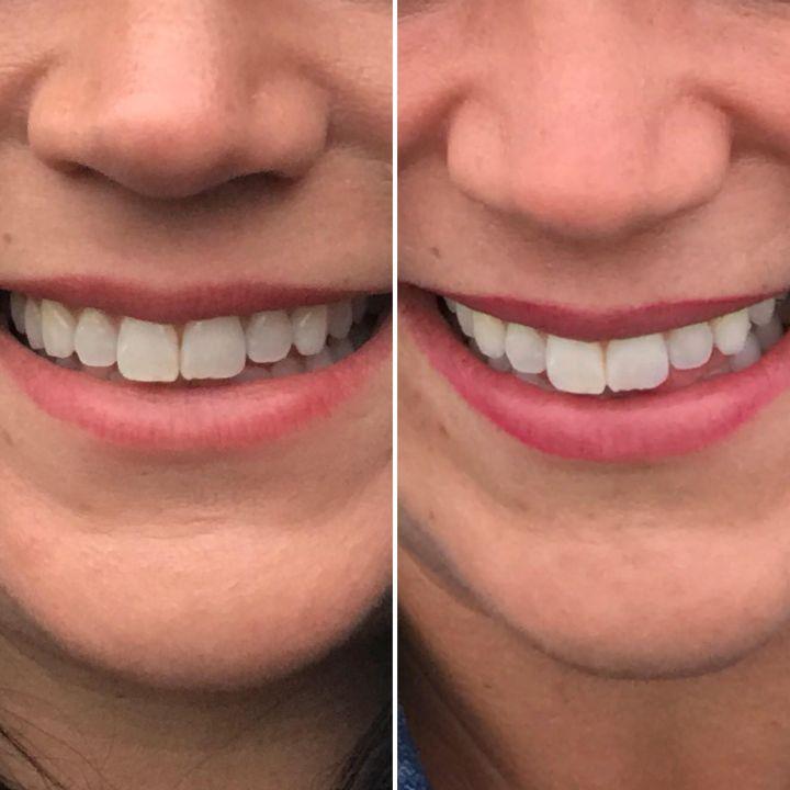 teeth compare