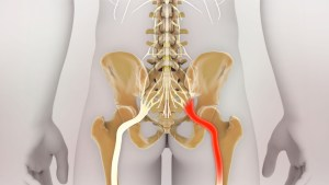 3D Rendering Sciatic Nerve Pain