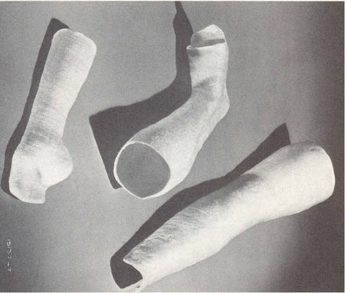 Orthopedic casts and prosthetic appliances