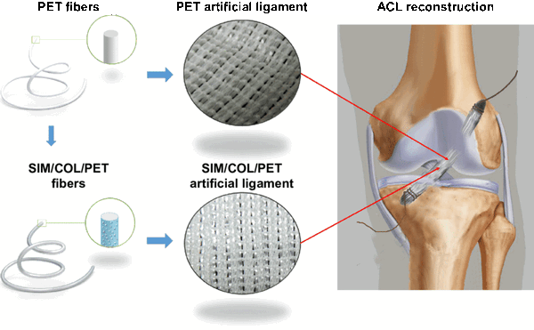 Artificial Ligaments