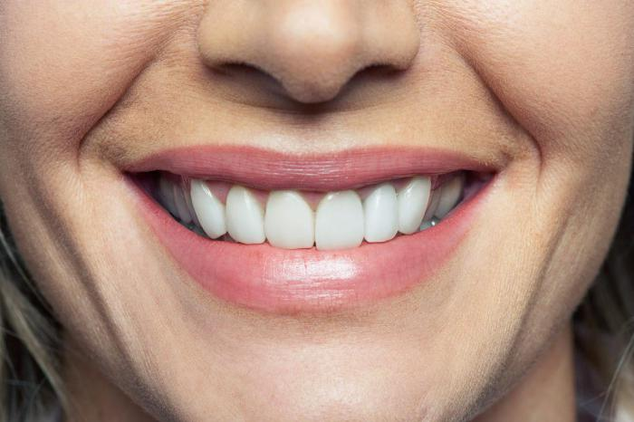 Стоматологические проблемы и болезни, которые можно благодаря им диагностировать