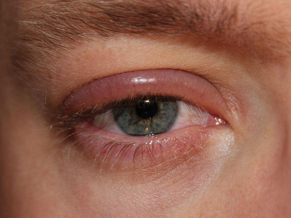 демодекозный блефарит симптомы